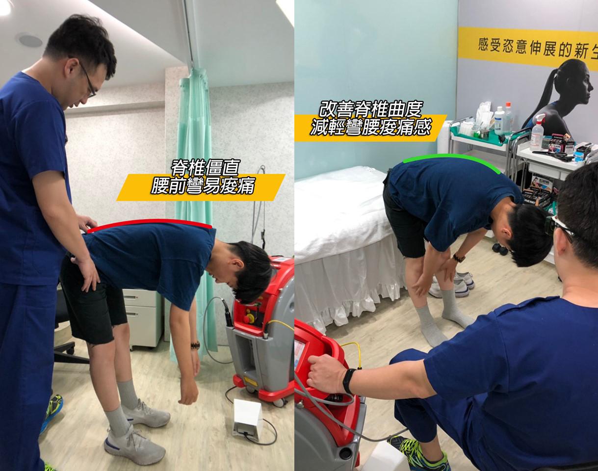 下背痛的雷射治療前後,彎腰角度對照圖