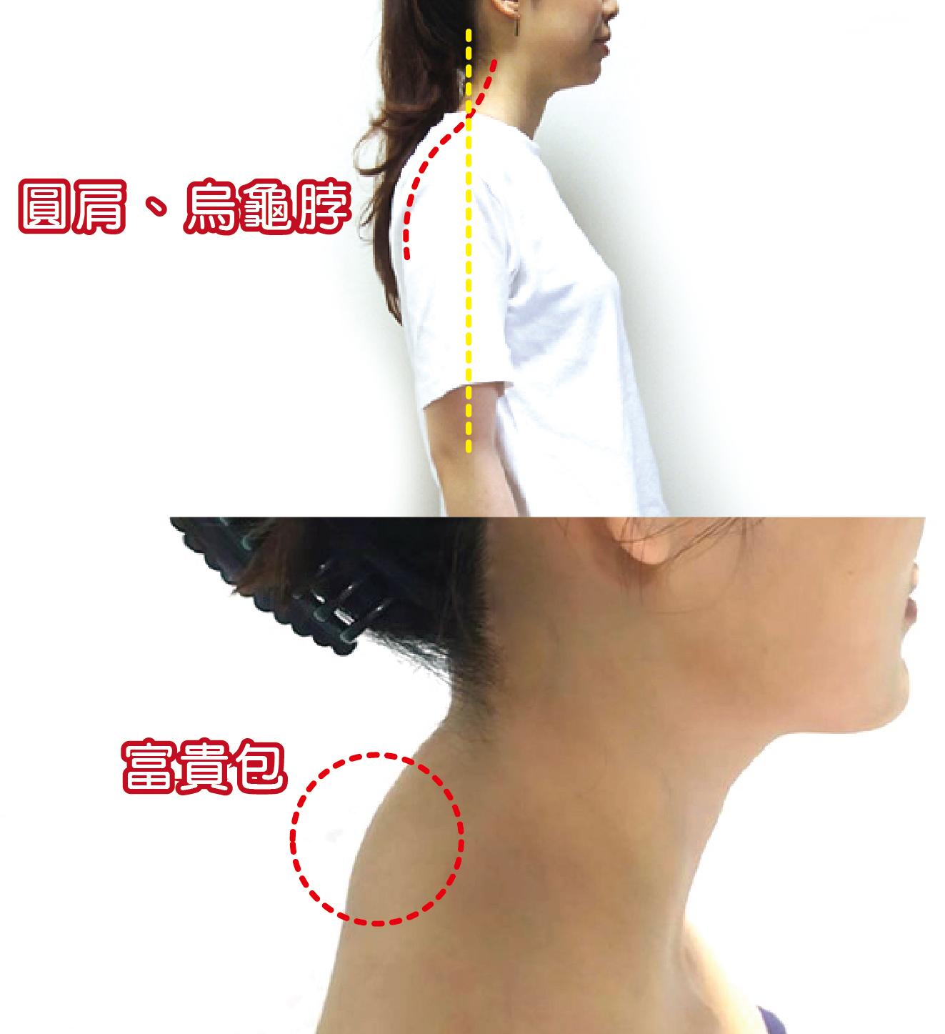 圓肩、烏龜脖、富貴包的局部放大圖