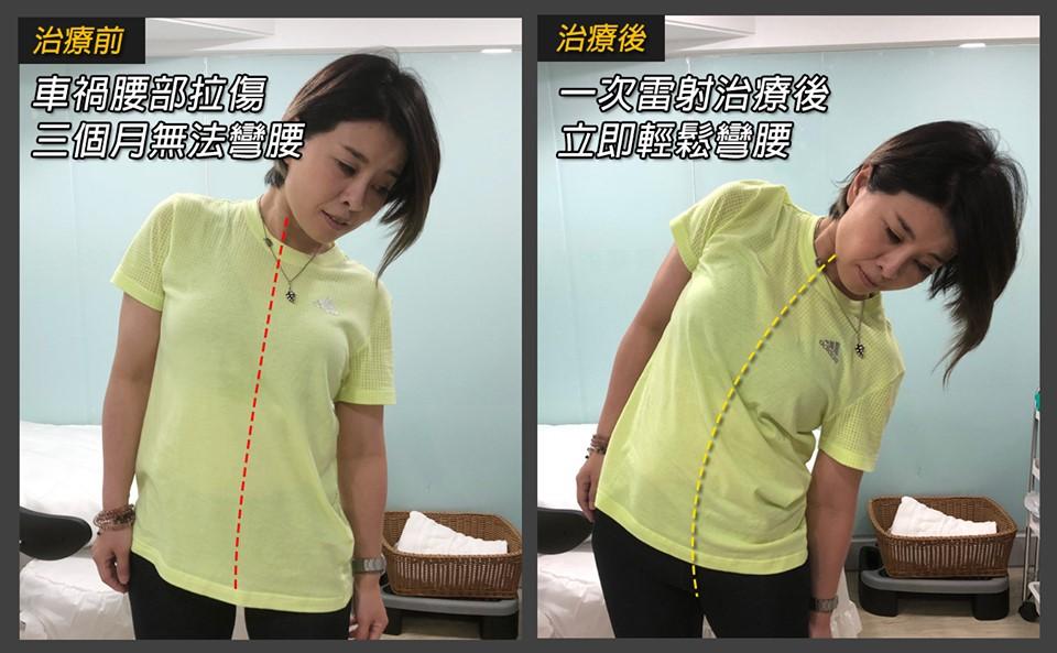 筋膜疼痛做完雷射治療的彎腰角度對照
