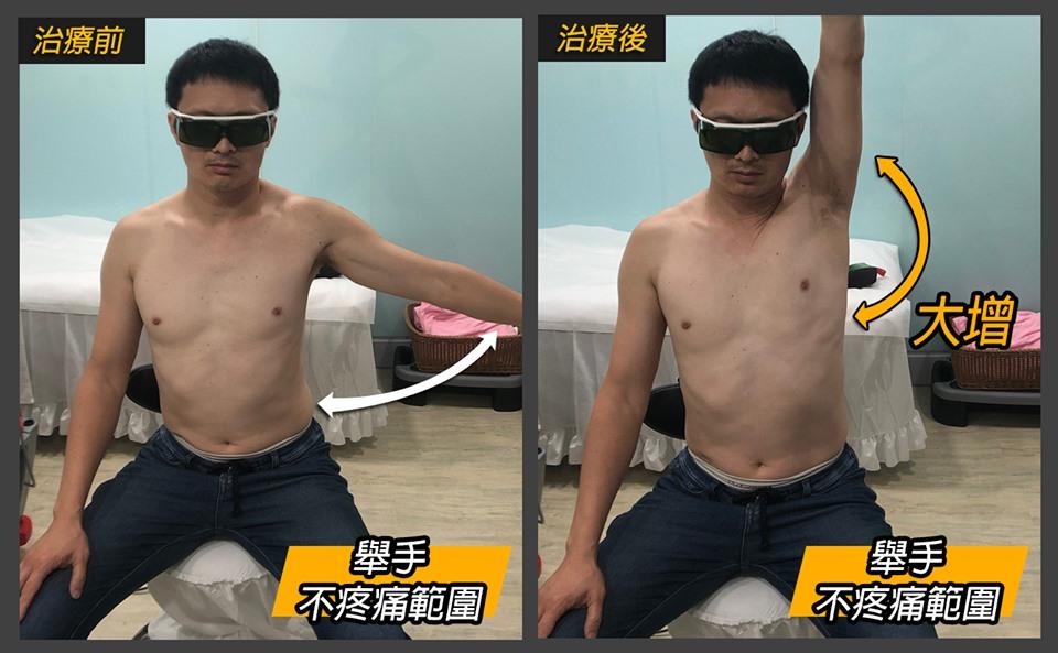 肩關夾擠症候群的雷射治療前後對照圖