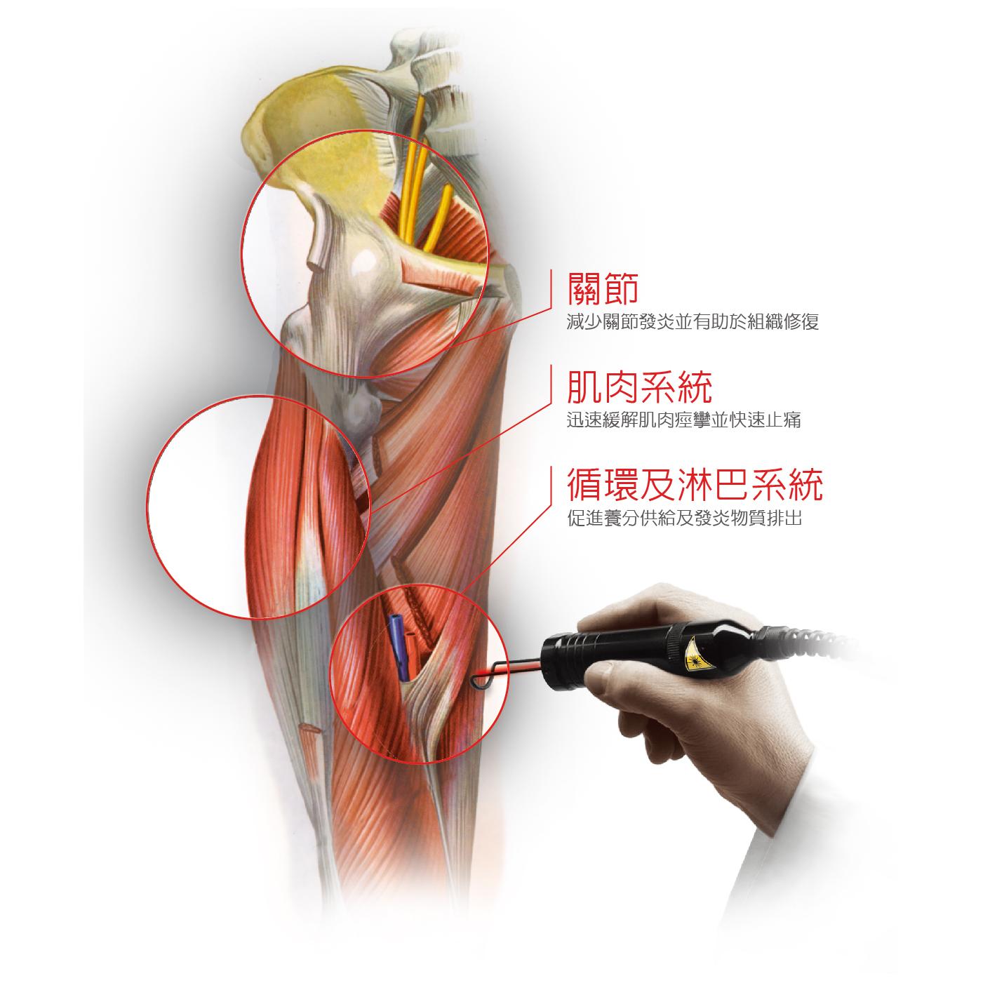 高能量雷射(喜樂雷射)對於肌腱肌肉作用的3D模擬