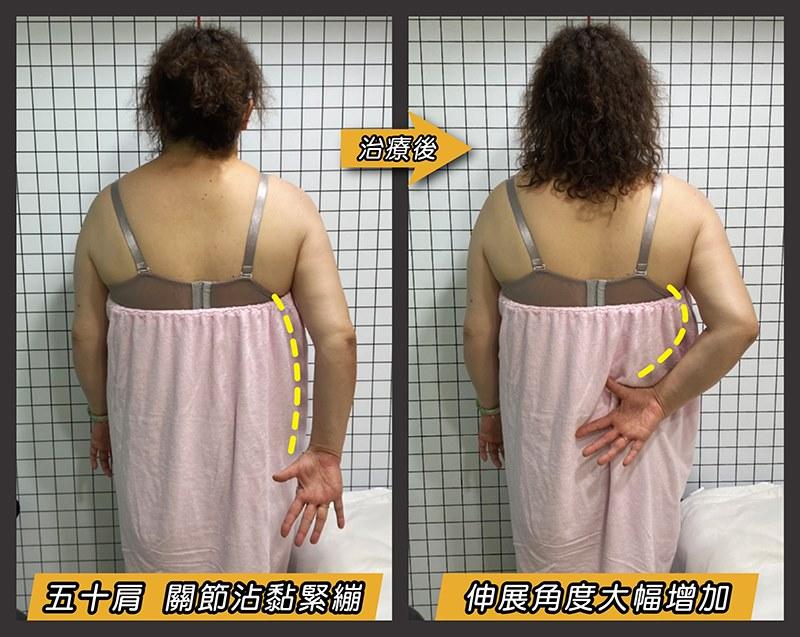 肩關節沾黏,雷射後角度增加