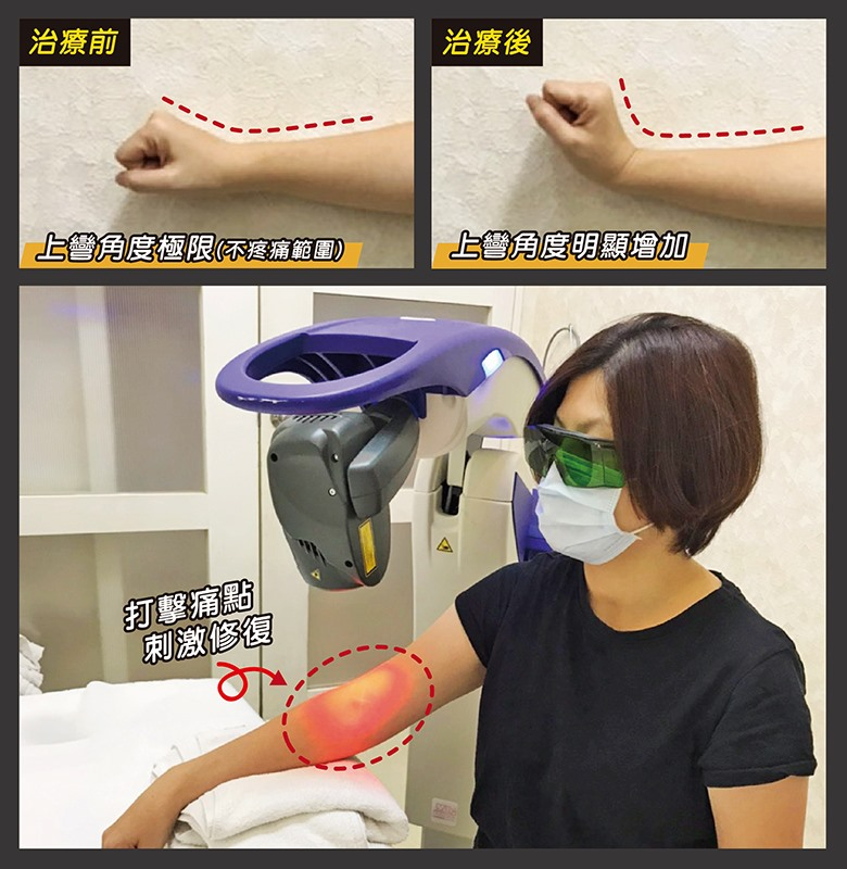 用高能量雷射治療網球肘